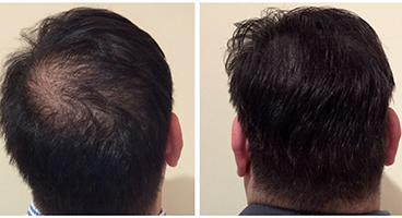 Scalp Micro Pigmentation density treatment for Thinning Hair
