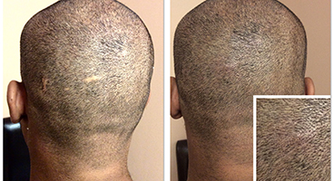Scalp Micro Pigmentation for Scalp Scars, Scars Camouflage