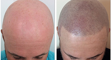 Scalp Micro Pigmentation shaved effect and hair line restoration
